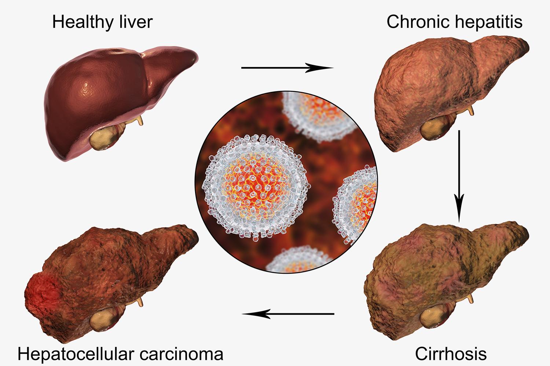 гепатит печени в картинках авторские описания, схемы