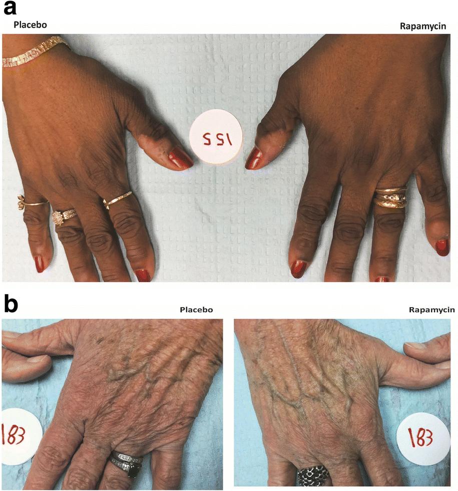 В США прошли первые клинические испытания «лекарства от старости»