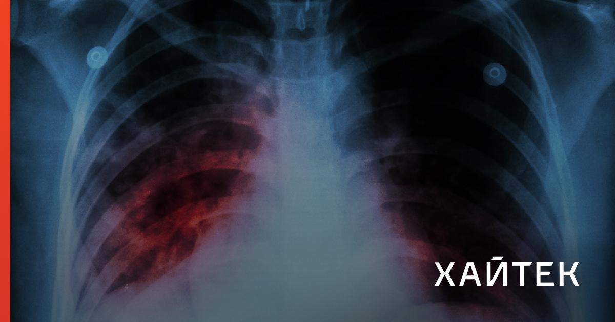 Туберкулез без палочки коха